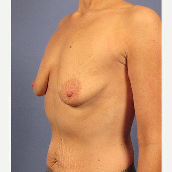 25-34 year old woman treated with Breast Implants before 3106685