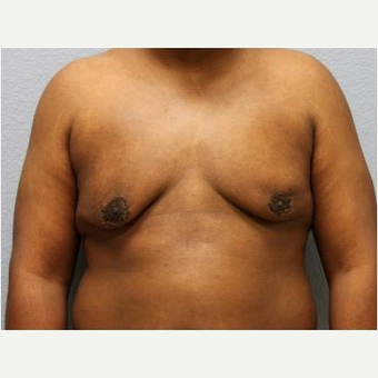 25-34 year old man treated with Male Breast Reduction after 3736951
