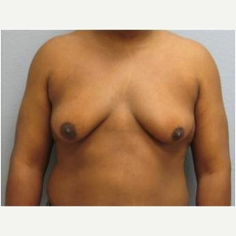 25-34 year old man treated with Male Breast Reduction before 3736951