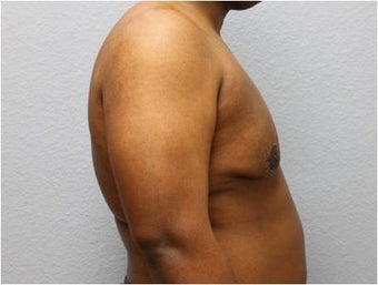 25-34 year old man treated with Male Breast Reduction 3736951