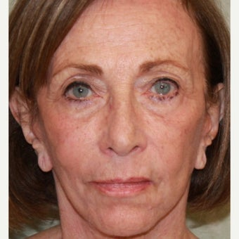 75 yo  woman treated with CO2 Laser ,  face and neck lift