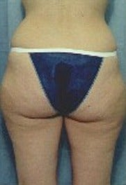 35-44 year old woman treated with Liposuction outer thighs