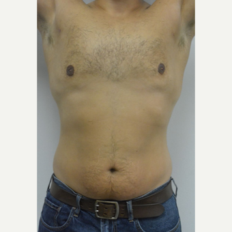 25-34 year old man treated with Male Breast Reduction after 3070573
