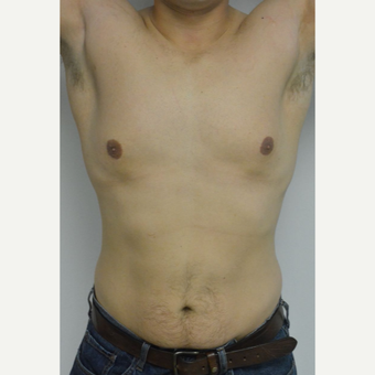 25-34 year old man treated with Male Breast Reduction before 3070573