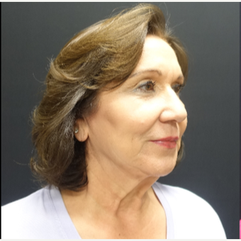 65-74 year old woman treated with SMAS Facelift before 3244971