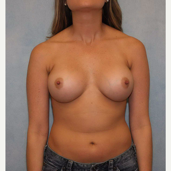 25-34 year old woman treated with Breast Augmentation after 3487473