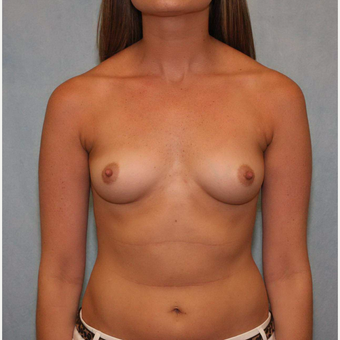 25-34 year old woman treated with Breast Augmentation before 3487473