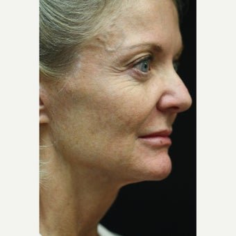 59 year old woman treated with Laser Treatment for sun damage, hyperpigmentation, and scars before 2275634