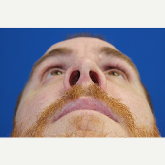 25-34 year old man treated with a Septoplasty and Functional Rhinoplasty after 3215056