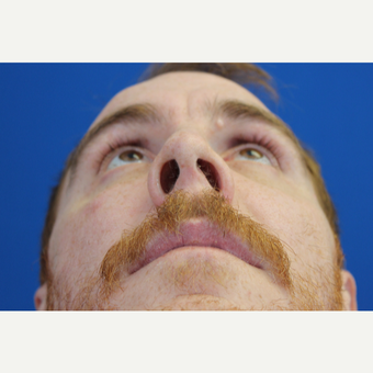 25-34 year old man treated with a Septoplasty and Functional Rhinoplasty before 3215056