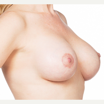 Breast Implants after 3294416