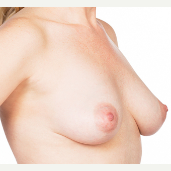 Breast Implants before 3294416
