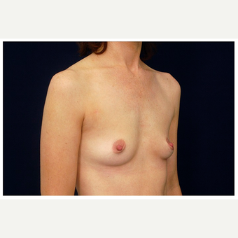 35-44 year old woman treated with Breast Augmentation before 3075761