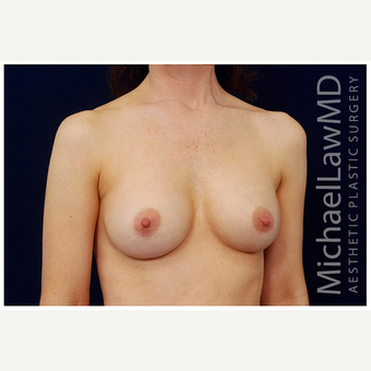 35-44 year old woman treated with Breast Augmentation after 3075761