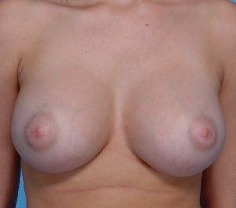 Saline implants for breast augmentation