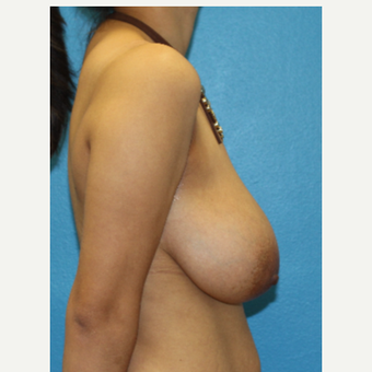 25-34 year old woman treated with Breast Reduction before 3091339