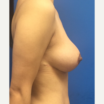 25-34 year old woman treated with Breast Reduction after 3091339