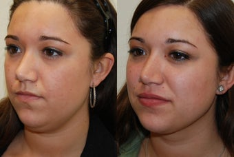 Neck and Jaw-Line Liposuction. Silicone Lip Injections.