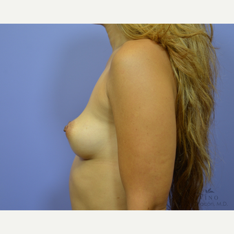 35-44 year old woman treated with Breast Augmentation before 3329352