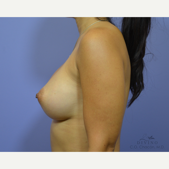 35-44 year old woman treated with Breast Augmentation after 3329352