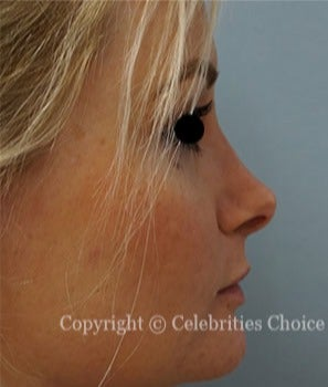 25-34 year old woman treated with Rhinoplasty after 2769031