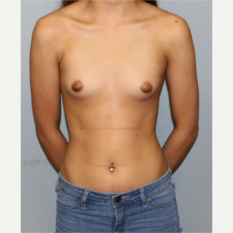 18-24 year old woman treated with Breast Augmentation before 3548973