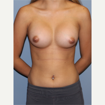 18-24 year old woman treated with Breast Augmentation after 3548973