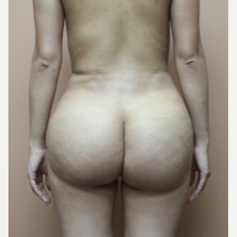 25-34 year old woman treated with Brazilian Butt Lift after 3446798