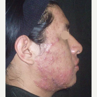 18-24 year old man treated with TCA Peel before 3140223