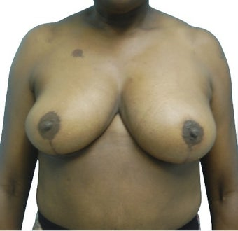 3 Month Post Operative Breast Reduction after 1100170