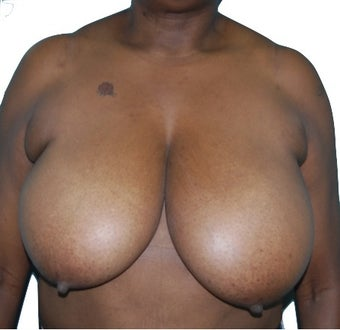 3 Month Post Operative Breast Reduction before 1100170