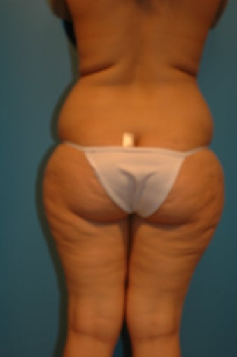 Abdominoplasty  (tummy tuck) 475937