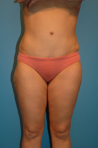 Abdominoplasty  (tummy tuck) after 475937