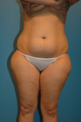 Abdominoplasty  (tummy tuck) before 475937
