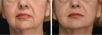 Correction of Nasolabial Folds and Marionette Lines with Restylane and Perlane before 1030387