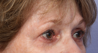 Eyelid Surgery after 302480