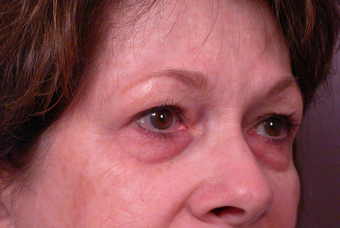 Eyelid Surgery before 302480