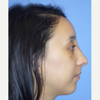 25-34 year old woman treated with Rhinoplasty after 3764688