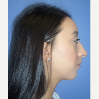 25-34 year old woman treated with Rhinoplasty before 3764688