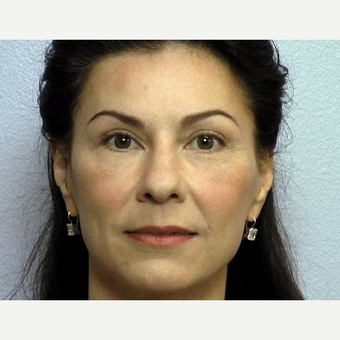 "43 year old woman with stern facial expression due to lower eyelid ""bags"" and upper lid skin laxity after 3288432"