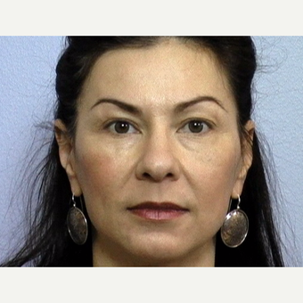 "43 year old woman with stern facial expression due to lower eyelid ""bags"" and upper lid skin laxity before 3288432"