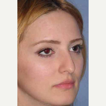 25-34 year old woman treated with Rhinoplasty before 3499728