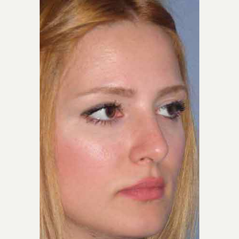25-34 year old woman treated with Rhinoplasty after 3499728