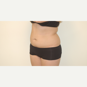 25-34 year old woman treated with Smart Lipo before 3281148