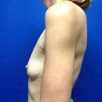 45-54 year old woman treated with Breast Augmentation before 3175486