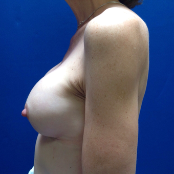 45-54 year old woman treated with Breast Augmentation after 3175486