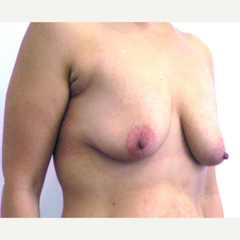33 year-old female underwent an anchor incision breast lift. before 3437475
