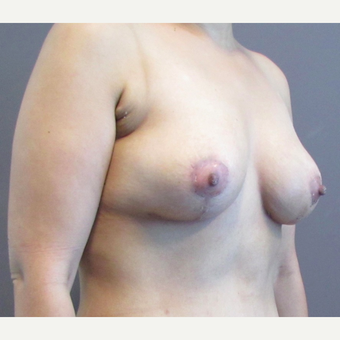 33 year-old female underwent an anchor incision breast lift. after 3437475