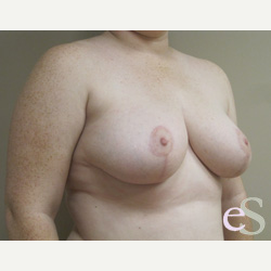 Breast Reduction after 3373518