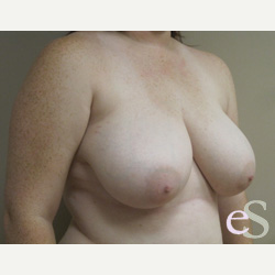 Breast Reduction before 3373518